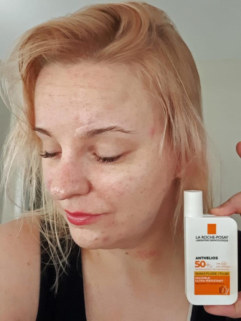 La Roche-Posayn aurinkosuojavoide allergiselle iholle.